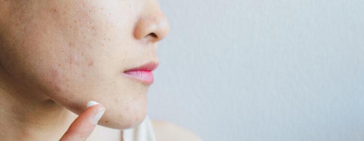 Cicatrices de boutons d'acné